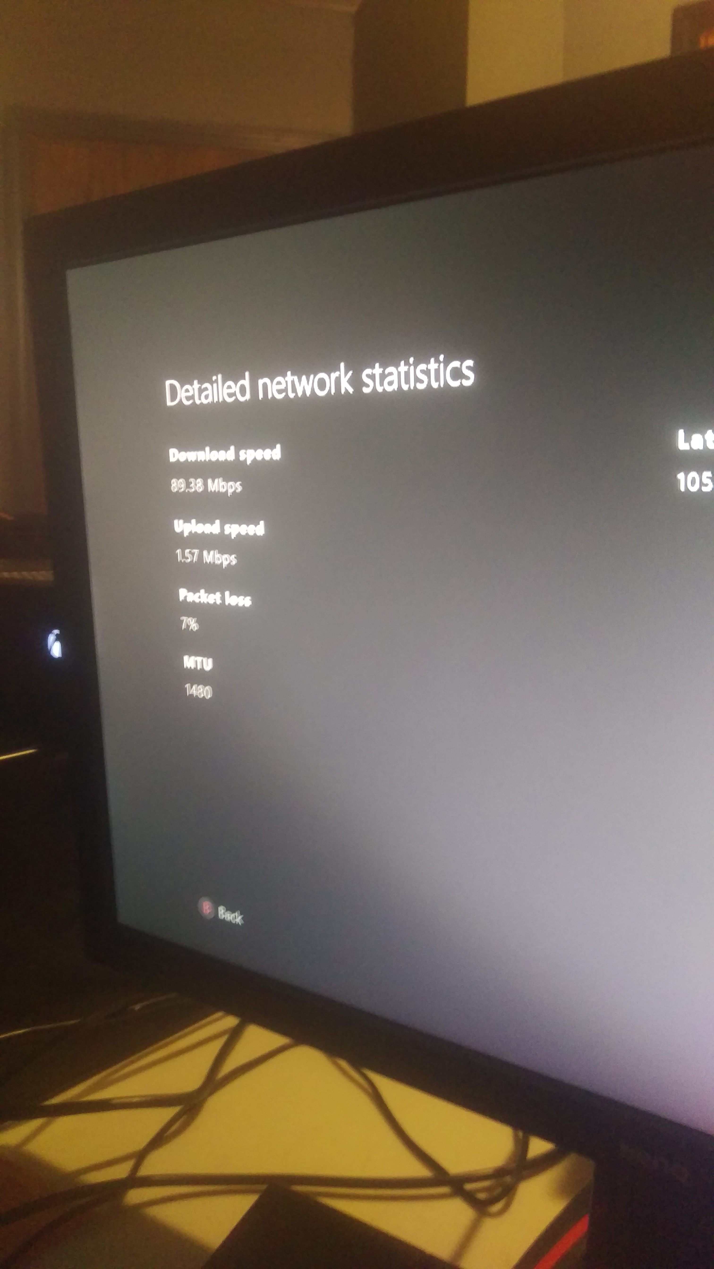 Xbox lag and pack your loss - Internet - Internet Forum